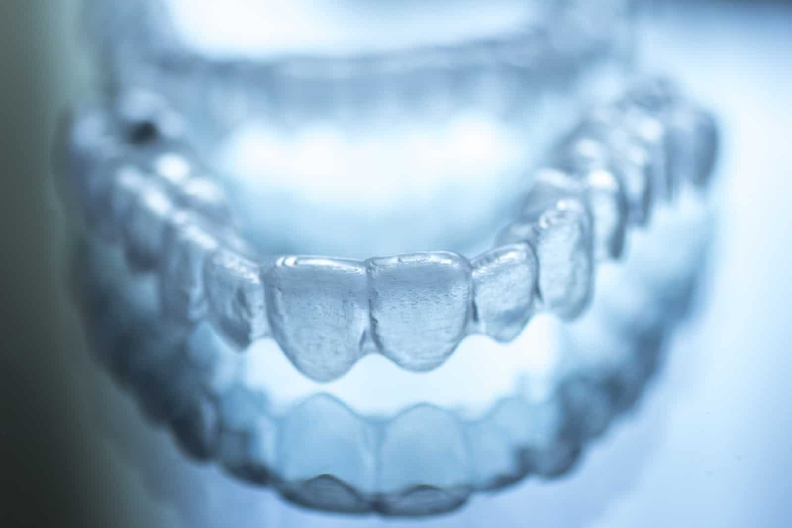 top 3 surprising benefits of invisalign