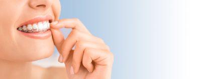 totally-orthodontics-onpage